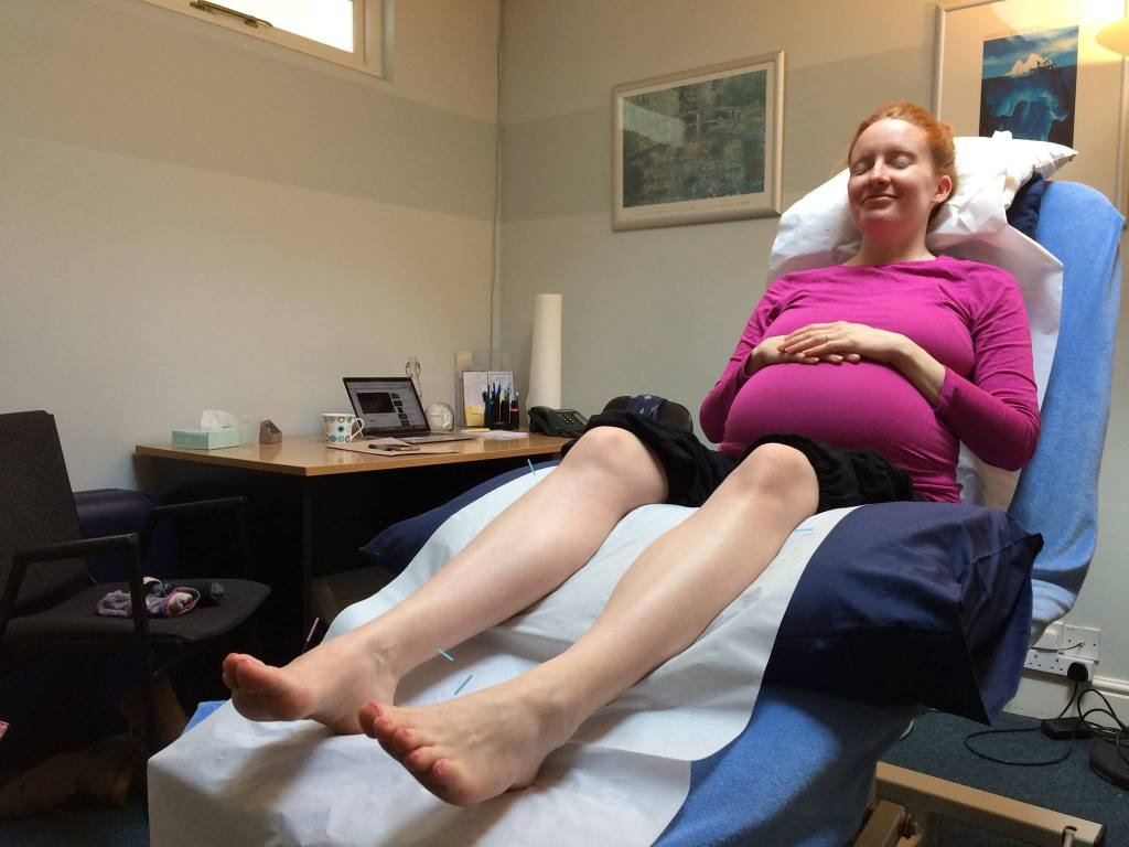 acupuncture pregnancy henley